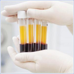 Αναζωογόνηση Κόλπου με PRP (Πλούσιο Πλάσμα σε Αιμοπετάλια)